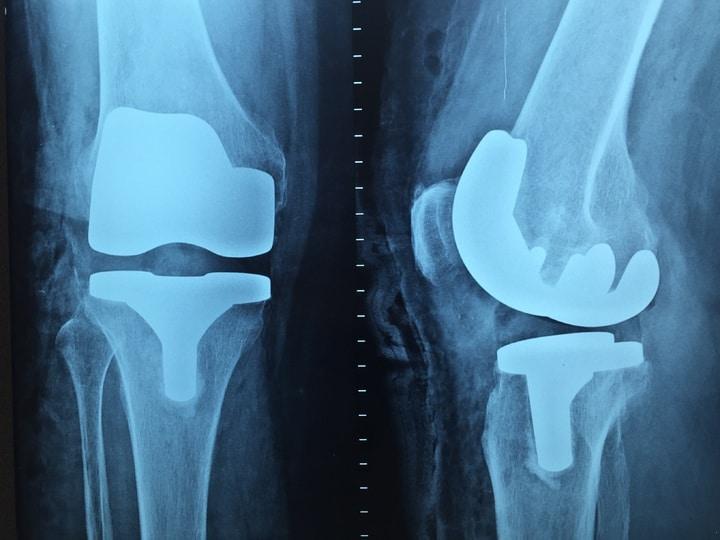 X-Ray of knee arthroplasty. knee replacement surgery.