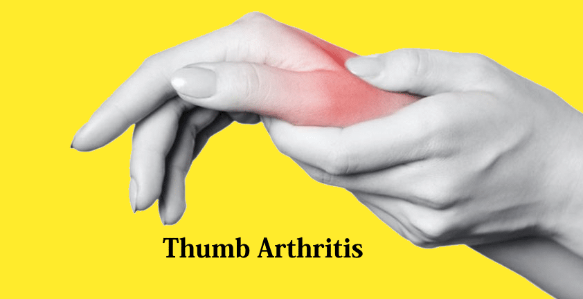 the ultimate guide to thumb joint arthritis by inoesis